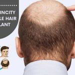 Jaipur SkinCity Affordable Hair Transplant in Jaipur: Dr. Sachin Sharda